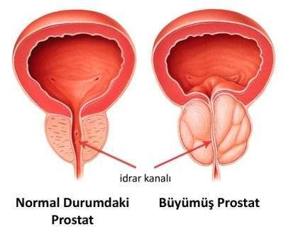 prostat, prostat iltihabı, prostat büyümesi, prostat kanseri